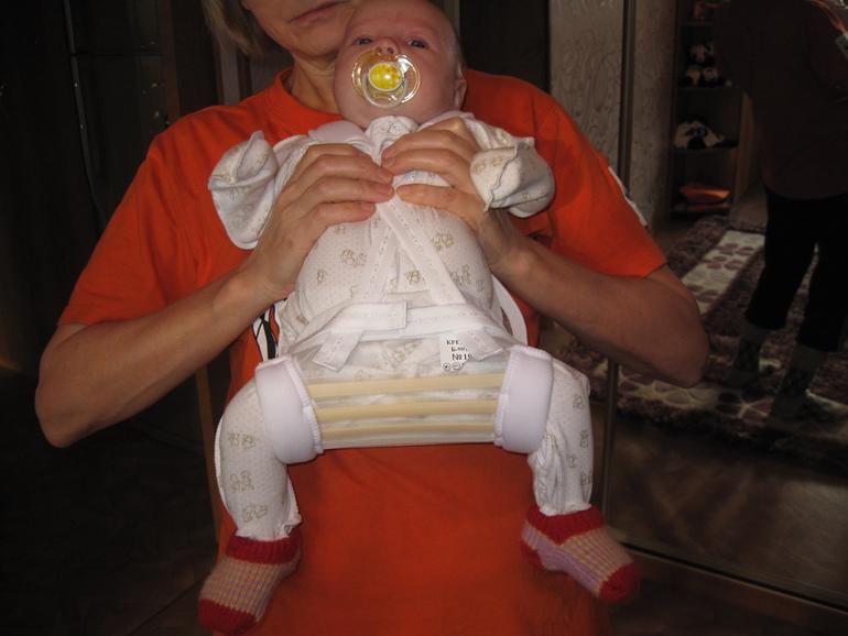 Дисплазия тазобедренных суставов у новорожденных форум беларусь гомель народные средства примула сустав