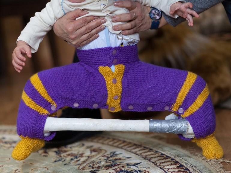 Свяжу штанишки на загипсованные ножки