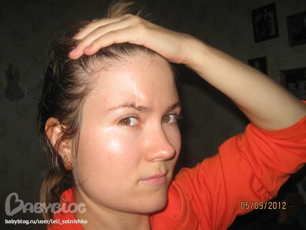 Вырастить волосы на шраме