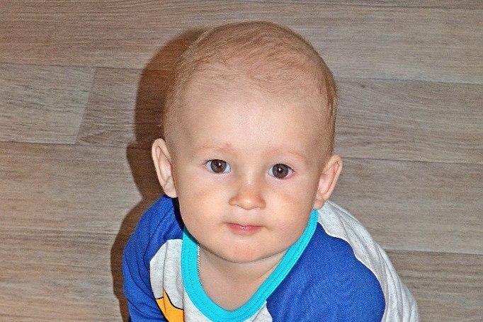свищ шеи у ребенка операция фото