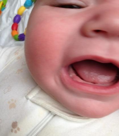 узлы бона у младенцев фото
