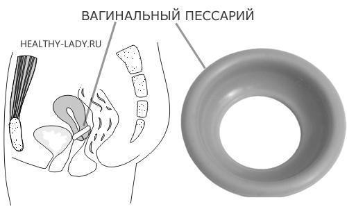 setka-na-vlagalishe-perednyaya-chast