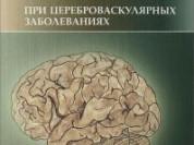 Когнитивные нарушения (новая)