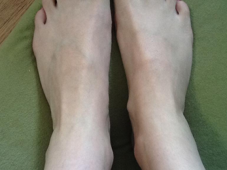 Как убрать косточки на ногах в домашних условиях йодом