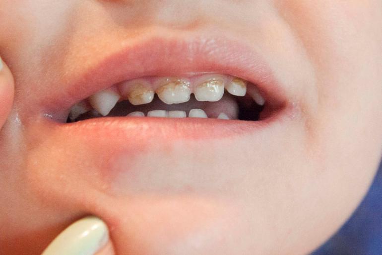 Метод лечения плоскостопия у детей