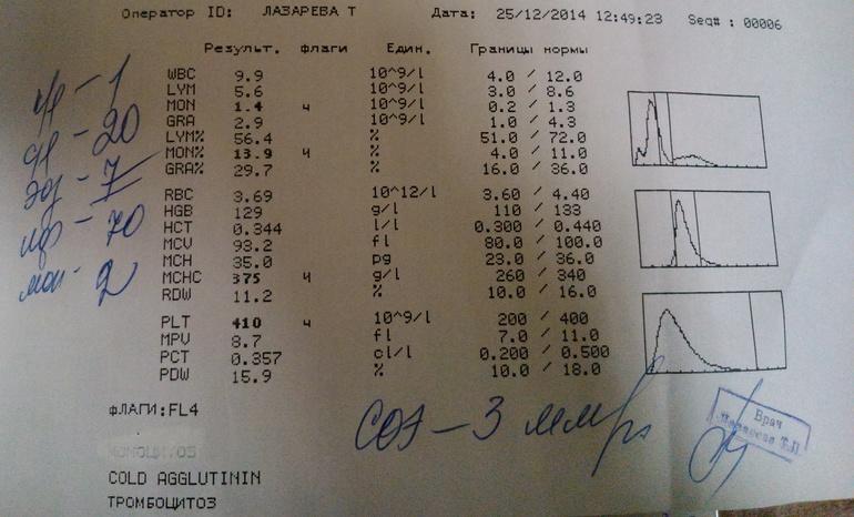 Как расшифровать анализ крови-моноциты лейкоз и общий анализ крови