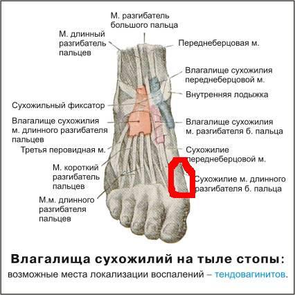 Разрыв сухожилия разгибателя пальца как лечить