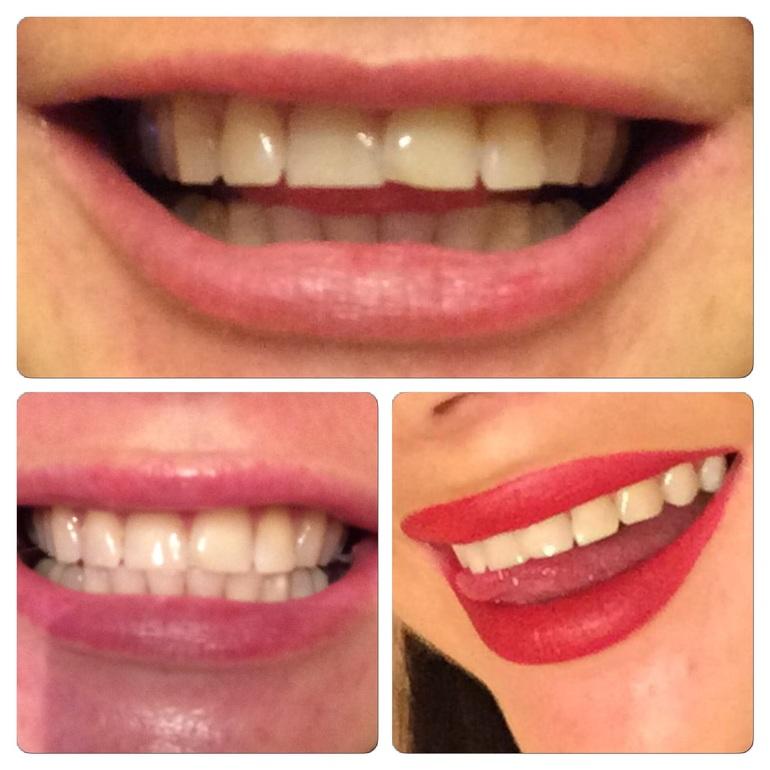 Полоски для отбеливания зубов 3d white украина