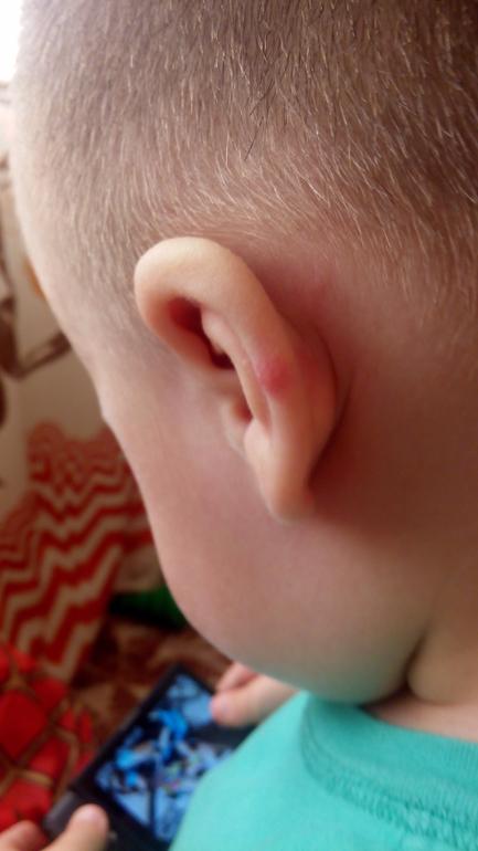 Водяные прыщи за ухом