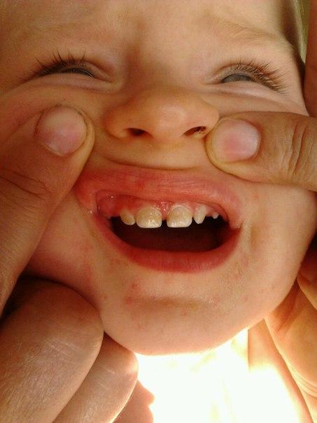 Ребенок 1 год темный налет на зубах