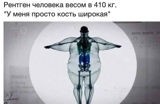широкая кость:)