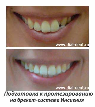 Ортодонтическая подготовка к протезированию