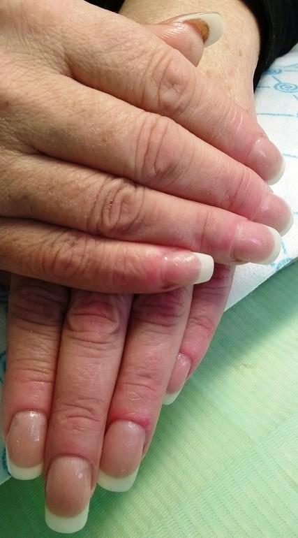 аллергия на кератиновое выпрямление волос фото