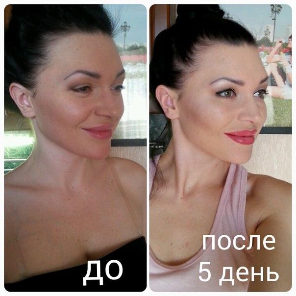 Увеличение губ ботоксом фото до и после