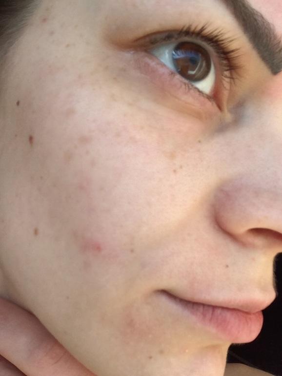 как убрать пятна на лице от солнца