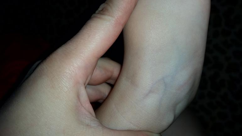 Фиолетовые вены на ногах у ребенка 2-х лет - запись пользователя ...