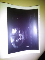Фото УЗИ на 17 неделе беременности