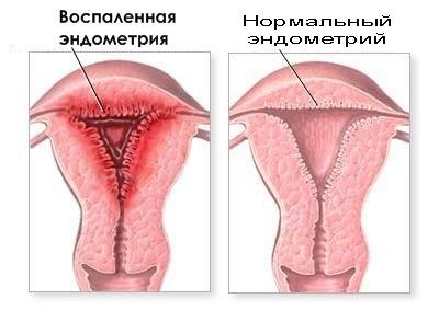 Регулярность менструального цикла