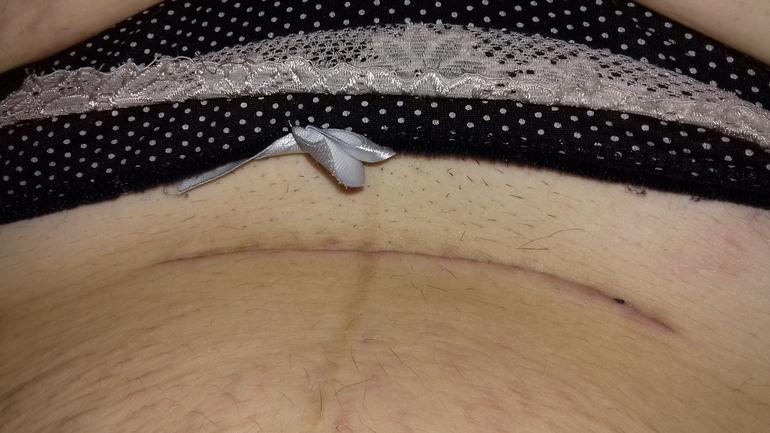 Болит спина после кесарева сечения причины лечение болей
