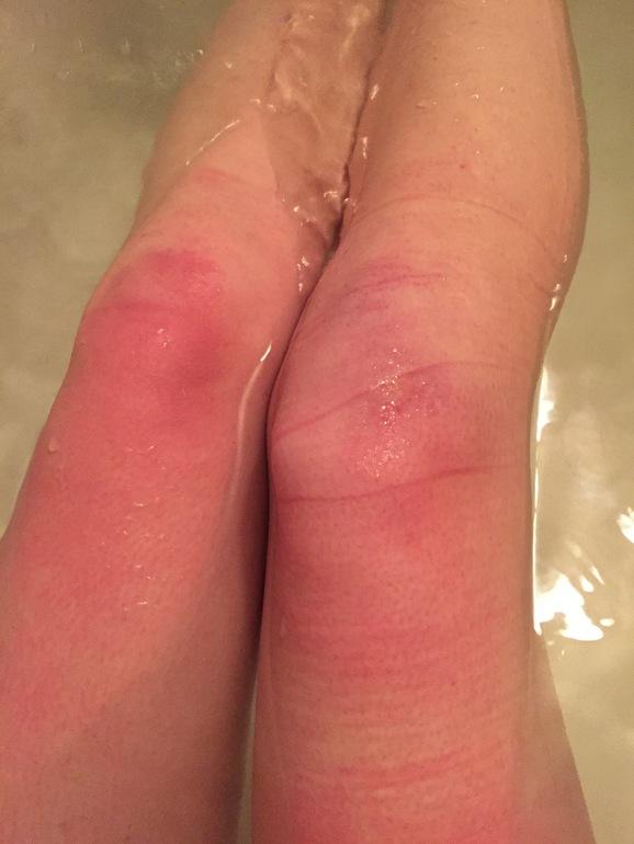 Сильная боль под коленом