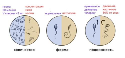 Какие пить витамины для подвижности сперматазоидов