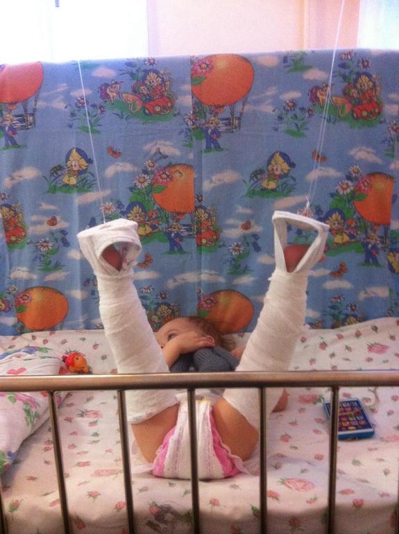 Гипс при вывихе тазобедренного сустава фото тазобедренный сустав болезни